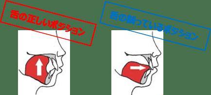 口呼吸の人の特徴